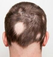 دلیل ریزش مو سکه ای