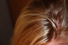 درمان موهای چرب