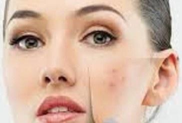 چه عواملی در تشدید  جوش صورت موثرند؟