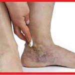 بیماری واریس چیست و چگونه درمان می شود؟