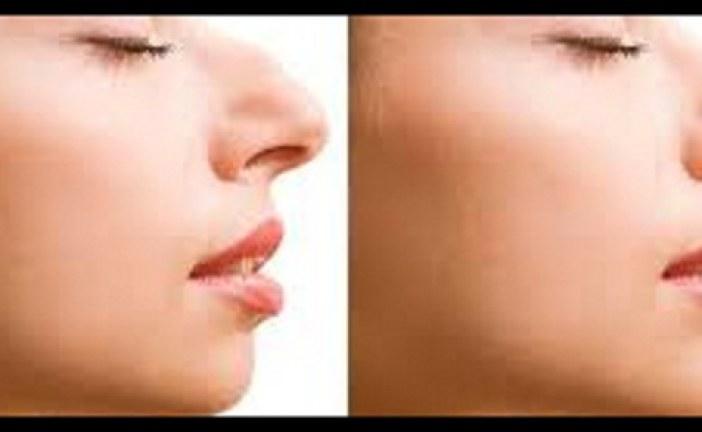 بدون جراحی بینی خود را کوچک و زیبا کنید