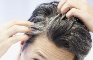 علت ایجاد مشکلات برای  موها