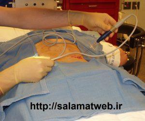 جراحی اخرین راه درمان تنگی کانال نخاع