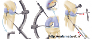 روش جراحی برای درمان پای پرانتزی