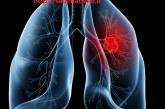 سرطان ریه عامل مرگ و میر زنان در جهان