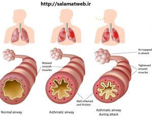 روش درمان بیماری آسم