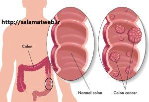 روش های درمان سرطان روده بزرگ