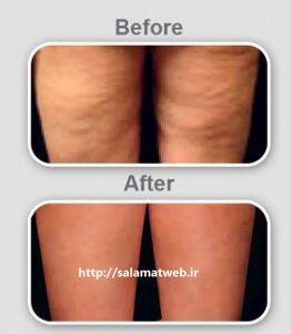 مزوتراپی درمان مناسبی برای سلولیت و رفع چاقی های موضعی