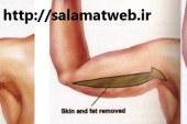 کوچک کردن بازوها با جراحی زیبایی براکیولاستی
