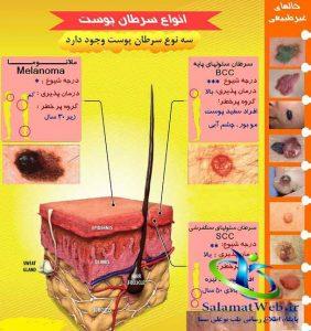 درمان موثر سرطان پوست با جراحی ماز