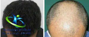 مراقبت های پس از کاشت مو به شیوه SUT