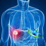 آشنایی با بیماری کشنده سرطان کبد