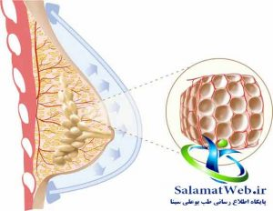 تزریق چربی برای بزرگتر کردن سینه های کوچک