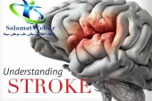 دانستنی های مفید در مورد سکته مغزی