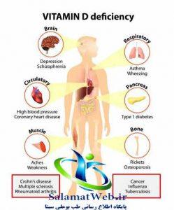 راه درمان نرمی استخوان