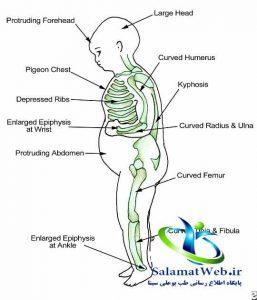 نرمی استخوان چیست؟