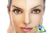 کرم سفید کننده و روشن کننده+بهترین مارک کرم روشن کننده پوست صورت و بدن