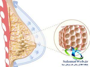 تزریق چربی برای بزرگ شدن سینه