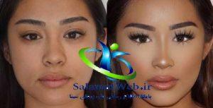 کوچک کردن بینی بدون جراحی با لیزر