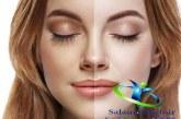 چگونه پوست سیاه را سفید کنیم+روشهای سفید کردن پوست صورت و بدن در کمترین زمان