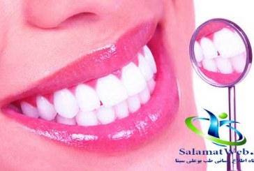 لمینیت دندان اعجازی در زیبایی و جذابیت لبخند شما