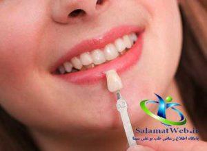 هزینه لمینیت دندان چقدر است