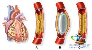 عوارض بعد از آنژیوگرافی قلب