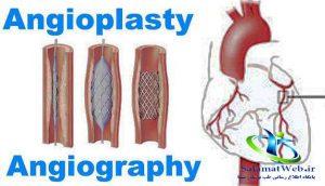 هزینه آنژیوگرافی قلب