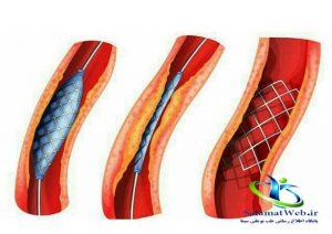 هزینه آنژیوگرافی قلب سال 96