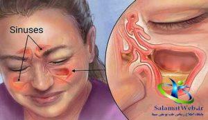درمان گودی پشت چشم