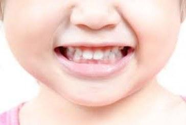 بهداشت دندان های کودک
