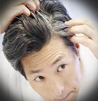 جلوگیری از سفید شدن موی سر