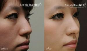 قبل و بعد از تزریق ژل بینی