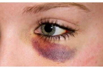 رفع کبودی دور چشم پس از عمل بینی