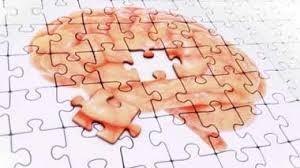 نشانه های بارز ابتلا به آلزایمر چیست؟