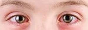 التهاب چشمان بیماری های التهابی بدنتان را بازگو می کند