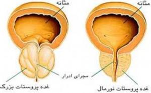 راه های شناخت سرطان پروستات ودرمان ان