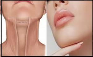 پیشگیری از شل شدن پوست