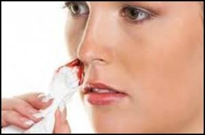 علت خونریزی از بینی و راه درمان آن