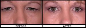 اطلاعات پیرامون قبل و بعد از عمل Blepharoplasty