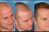 توصیه هایی مفید در انجام کاشت موی طبیعی