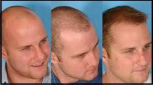 اطلاعات مفید پیرامون کاشت موی طبیعی