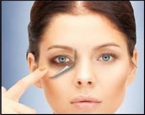 شیوه درمان تیرگی های دورز چشم