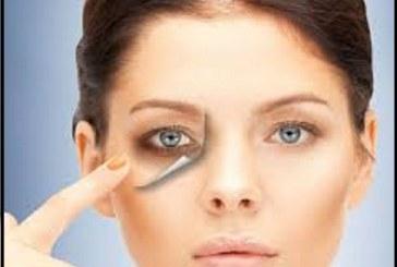 راه درمان تیرگی های دور چشم