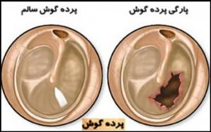 کم شنوایی از آغاز تا درمان آن