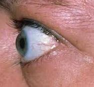 این چشم نشان دهنده پرکاری تیروئید است