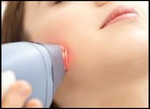کاربرد لیزر در حذف موهای زائد بدن