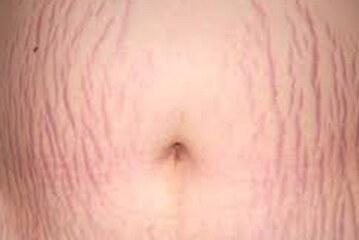 مراقب باشید پوستتان در بارداری ترک نخورد