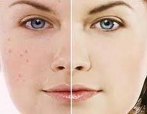 راهکارهای درمان جوش صورت