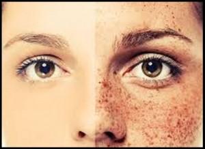 کاربرد لیزر در کاهش ملاسما یا لک صورت